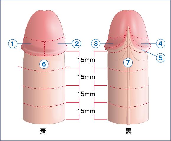 タイソン腺
